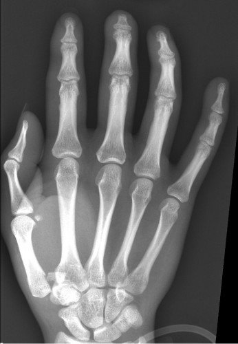 Imaging Case Of The Week 14