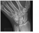 wrist x-ray 1
