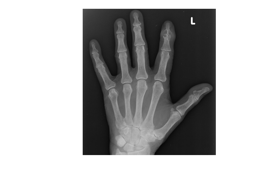 Xray Left Hand Imaging Case of the We...