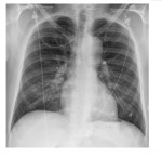 PA Chest X-Ray