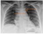 widening of the mediastinum