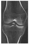 coronal knee CT
